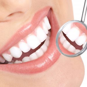 Igiene Dentale A Bergamo