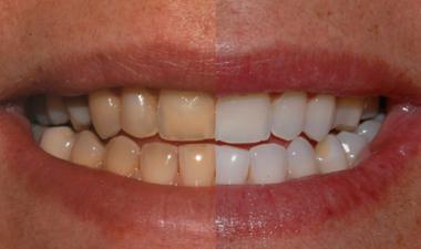 Sbiancamento Dentale Laser Assistito