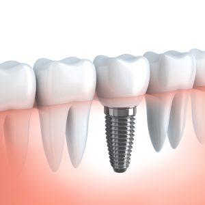 Implantologia, Protesi Fisse E Mobili