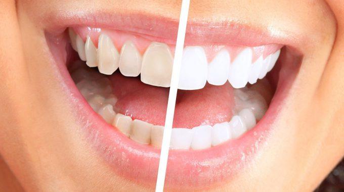 Sbiancamento Dentale Laser Bergamo