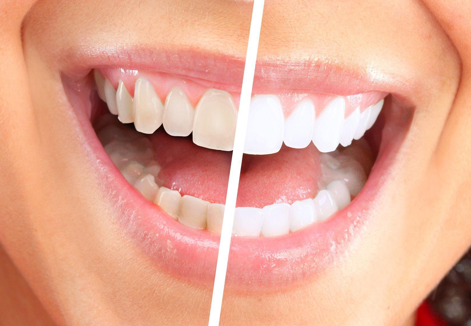 Promozione Sbiancamento Dentale Laser Assistito