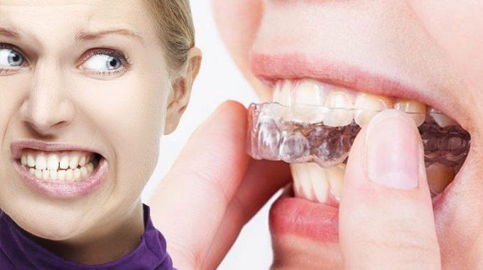 Bruxismo Digrignare Denti Rimedi Cause Sintomi Conseguenze Min